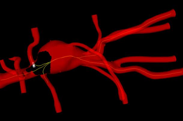 I den virtuelle 3D-modellen kan man til enhver tid se hvor instrumentene befinner seg inne i aorta basert på posisjonsdata fra s