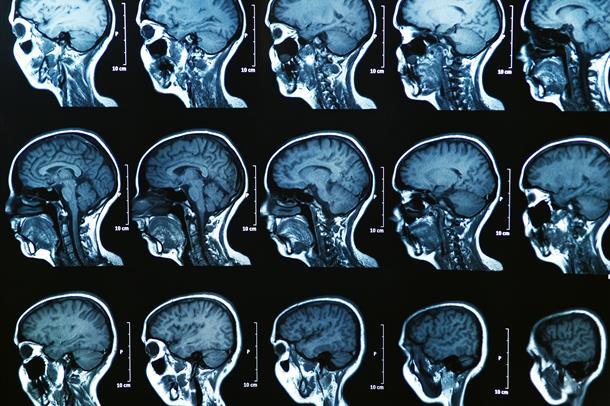 Bilder fra scan av en hjerne.